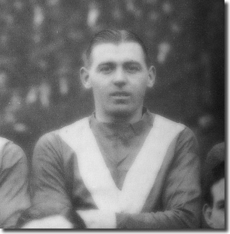 The unfortunate City captain Bob Hewison, who suffered a leg fracture in the first half
