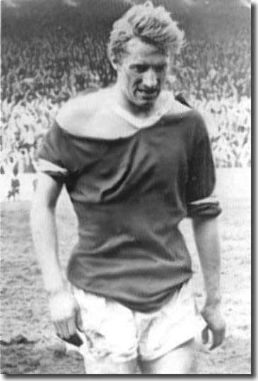 Denis Law shows the effects of battle after the first game